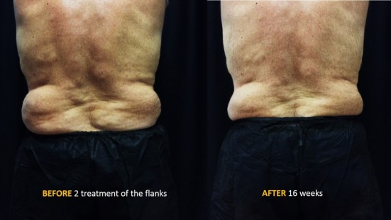 CoolSculpting - Back - 2 Treatments of Flanks